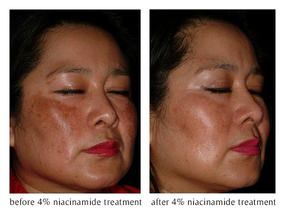 Vitamin B3 Cream – The Secret to Radiant, Blemish-Free ...